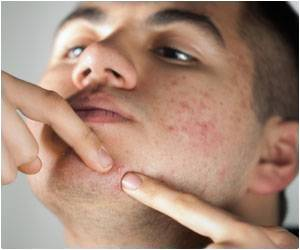 Man Popping Blemishes on His Chin