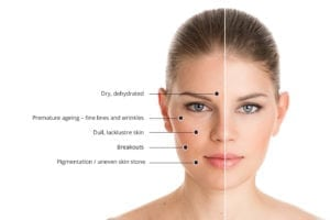 signs of skin stress