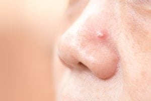 A pimple on nose