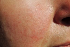 How to treat and soothe rosacea