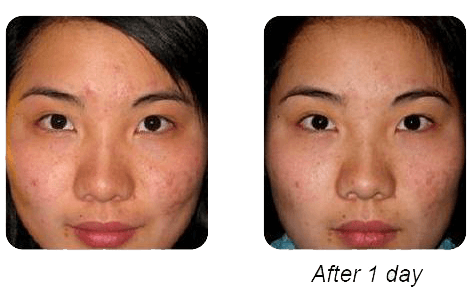 Rescue Ance Cream - Before & After
