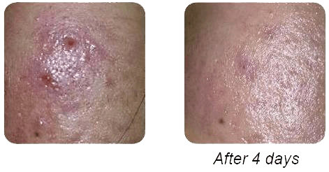 Acne - Before & After
